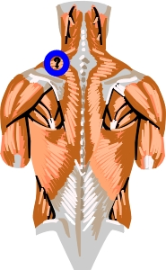 Picture of the trapezius muscle with a knot in it
