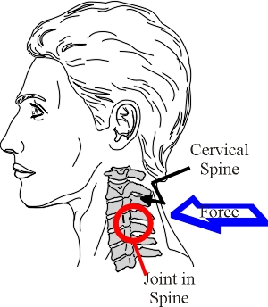 How a neck injury occurs